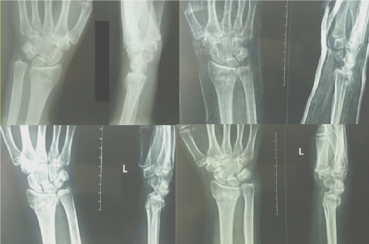 перелом нижнего конца лучевой кости фото расскажите, пожалуйста, как
